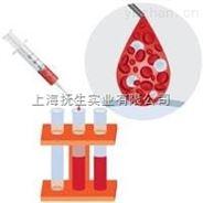 SP600125(JNK 抑制剂 )5mg价格